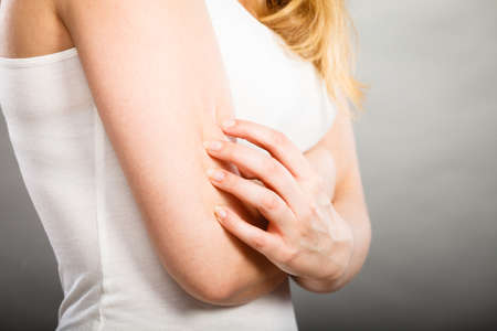 itchy: Health problem, skin diseases. Young woman scratching her itchy arm with allergy rash Stock Photo