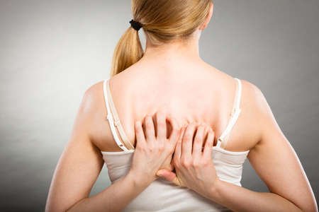 itchy: Health problem, skin diseases. Young woman scratching her itchy back with allergy rash