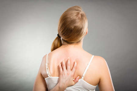 nape: Health problem, skin diseases. Young woman scratching her itchy back with allergy rash