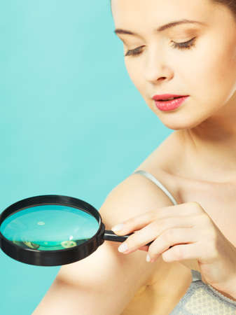 Skin control self examination concept. Yound woman holds magnifying glass in hand examining her body for melanoma suspicion. Checking benign moles.