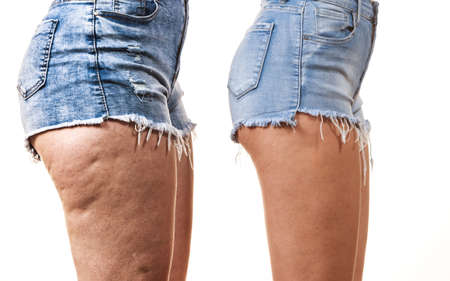 Comparison of female legs thighs with and without cellulite. Skin problem, body care, overweight and dieting concept. Foto de archivo