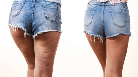 Comparison of female legs thighs with and without cellulite. Skin problem, body care, overweight and dieting concept. Zdjęcie Seryjne