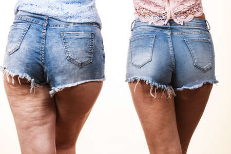 Comparison of female legs thighs with and without cellulite. Skin problem, body care, overweight and dieting concept. Stockfoto