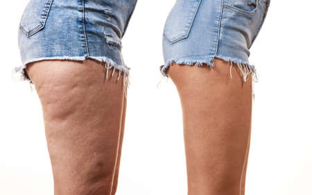 Comparison of female legs thighs with and without cellulite. Skin problem, body care, overweight and dieting concept. Imagens