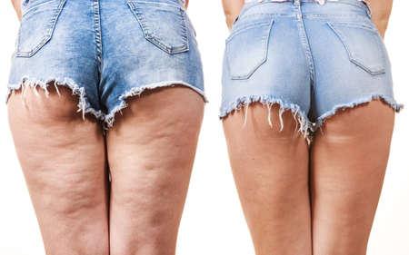 Comparación de piernas femeninas muslos con y sin celulitis. Problema de la piel, cuidado del cuerpo, sobrepeso y concepto de dieta.