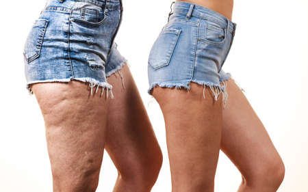 Comparison of female legs thighs with and without cellulite. Skin problem, body care, overweight and dieting concept. 스톡 콘텐츠