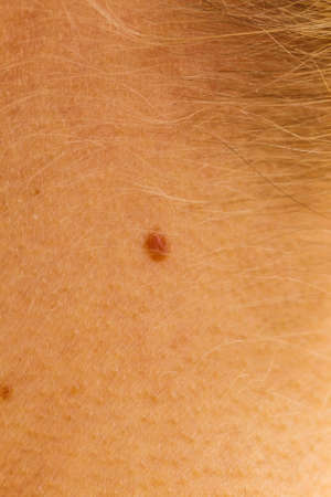 Close up of small mole on neck close to hair. Skin, dermatology treatment concept. Stock Photo