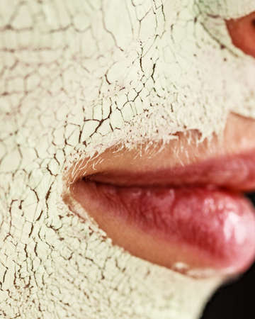 Close up woman with green white mud mask on face, detail view. Teen girl have dry cracked cosmetic on skin. Beauty treatment. Skincare. Stock Photo