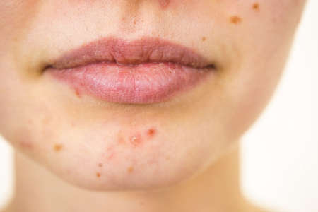 Young woman showing her face with acne and moles, dry lips. Teen girl no make up with red spots on her chin. Health problem, skin diseases.