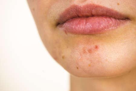 Jonge vrouw toont haar gezicht met acne en moedervlekken, droge lippen. Tienermeisje geen make-up met rode vlekken op haar kin. Gezondheidsprobleem, huidziekten.