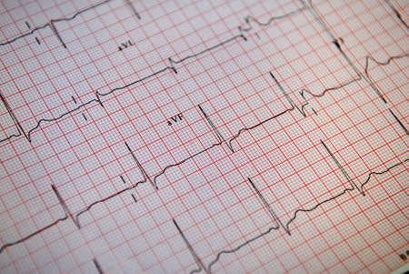 Normal ECG (EKG) Stock Photo - 2957310