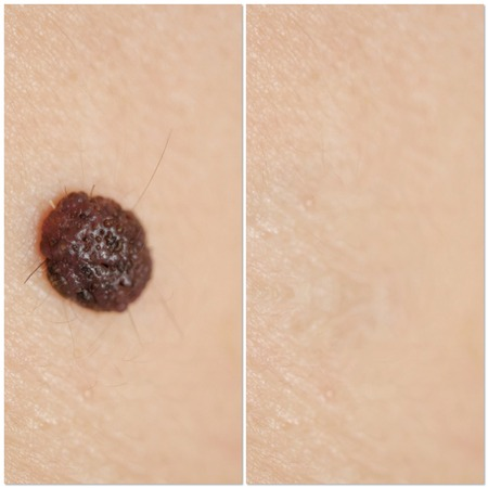 Laser removal of moles view before and after