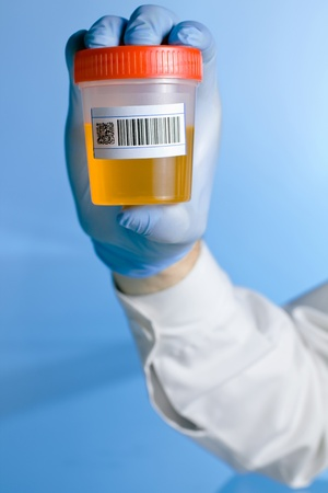 A lab technician holding a container with a urine sample bar code label for analysis on a blue background.