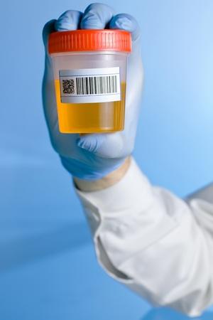 Un técnico de laboratorio sosteniendo un contenedor con una orina muestra la etiqueta de código de barras para análisis sobre un fondo azul.