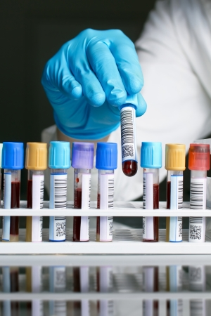tecnico laboratorio: Un t�cnico de laboratorio quitando un bastidor de tubo con una muestra de sangre con la etiqueta con c�digo de barras en un fondo negro