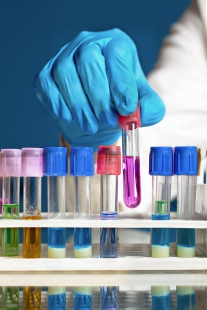 medical testing: a lab technician taking a rack full of tubes a test tube with a fluid with a pink and blue