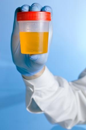 Un técnico de laboratorio sostiene un recipiente con una muestra de orina para el análisis sobre un fondo azul