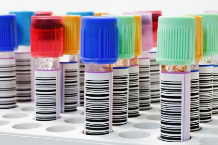 Collection of blood samples tubes placed in a rack Stock Photo - 11227234