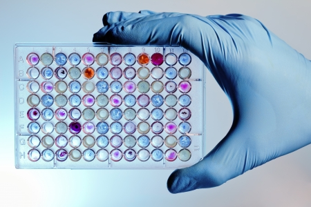 the biosphere: A hand with a microplate filled with color samples