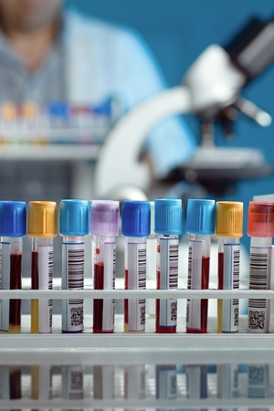 Scene where a tray appears tubes with blood samples in the foreground, a laboratory microscope and a technician moving a tray with more tubes Stock Photo