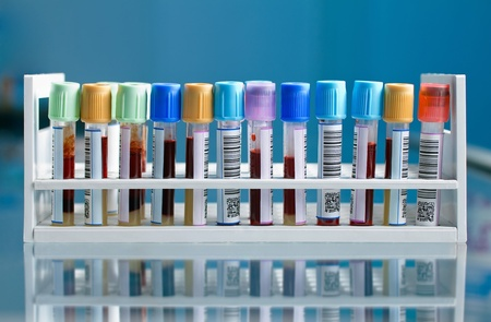 clinical laboratory: a tray with tubes of blood samples Stock Photo