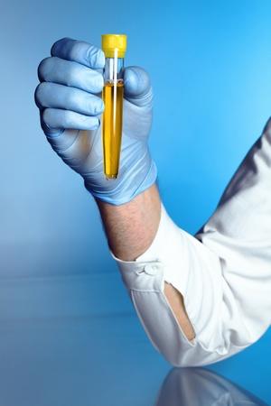 mano di un infermiere con un tubo giallo con un campione di urina Archivio Fotografico