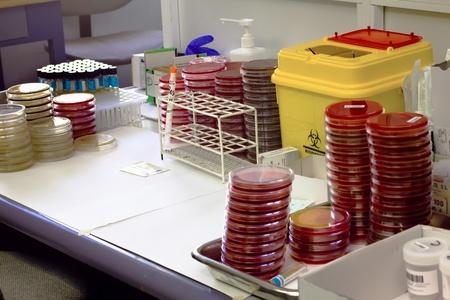 riesgo biologico: Una mesa de trabajo con varios platos y tubos Foto de archivo