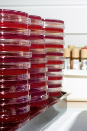 petri dishes on a tray and the bottom tubes of urine photo