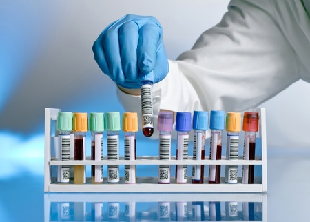 A laboratory technician removing a tube rack with a blood sample labeled with bar codes, on a blue background