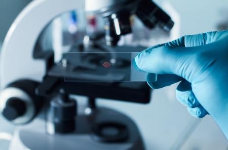 examenes de laboratorio: Muestra en portaobjetos preparados para el análisis en micro