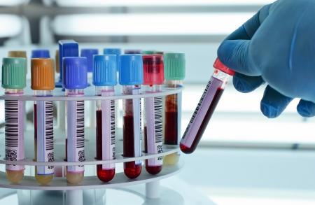 実験室の遠心分離機で血液チューブを配置する技術者