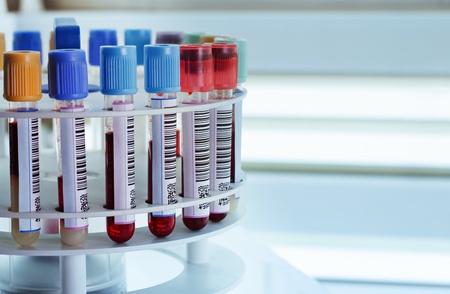 laboratorio clinico: tubos preparados en el laboratorio del banco de sangre de la máquina centrífuga Foto de archivo