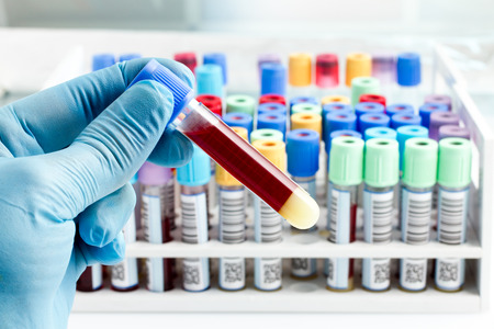 hand of a lab technician holding blood tube test and background a rack of color tubes with blood samples other patients  laboratory technician holding a blood tube test