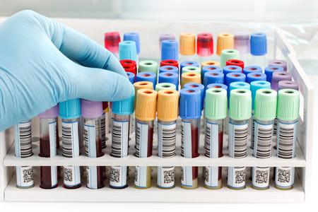 mano di una provetta di sangue tecnico di laboratorio che tiene con codice a barre su sfondo di laboratorio e un rack di tubi di colore con i campioni di sangue altri pazienti  medico mano che tiene una provetta di sangue con codice a barre per l'analisi in laboratorio