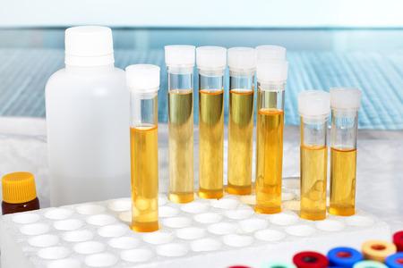 bastidor con varios tubos con análisis de orina en un banco de trabajo de laboratorio / análisis de orina en el laboratorio Foto de archivo