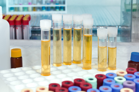 urinalysis: rack with several tubes with urinalysis and the background tubes for blood samples in the laboratory workbench  analysis of urine tubes in lab