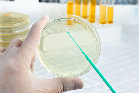 an inoculation: hand of microbiologist cultivating a petri dish whit inoculation loops and at background tubes and tools of laboratory  scientist with a hand holding a petri dish and the other an loopful Stock Photo