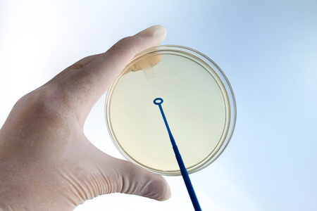 petri dish: hand of microbiologist cultivating a petri dish whit inoculation loops at background white and blue  doctor with a hand holding a petri dish and the other an inoculation loops