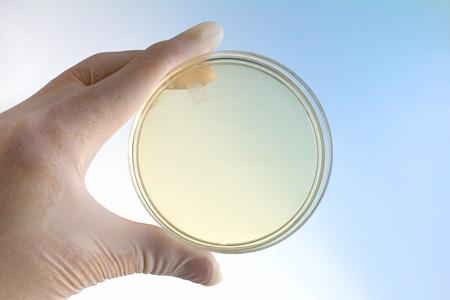 de hand van de microbioloog houden petrischaal op de achtergrond blauw en wit  wetenschapper met een hand houden van een petrischaal
