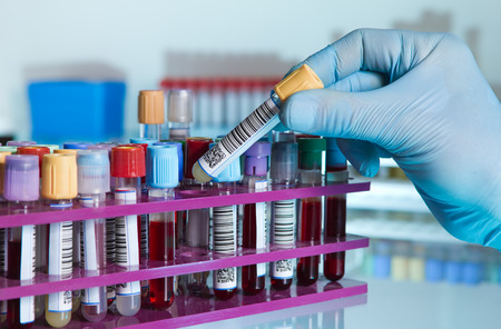 hand of a lab technician taking a tube of blood from a rack and the background color tubes with samples from other patients hand of laboratory technician holding a blood tube for analysis Stock Photo