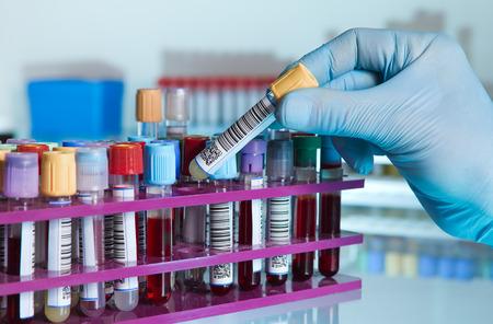 probeta: mano de un técnico de laboratorio de tomar un tubo de sangre de tubos de color de un bastidor y el fondo con muestras de otros pacientes mano del técnico de laboratorio que sostiene un tubo de sangre para el análisis