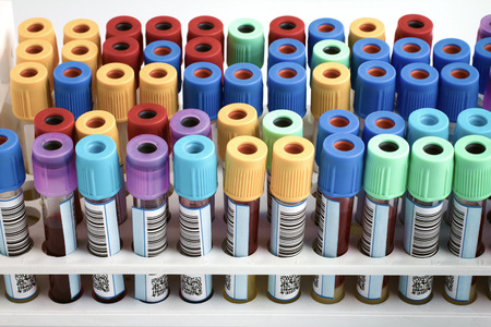 Tubes with bar code for analysis of blood samples in the hospital table  rack of blood tubes labeled in blood bank lab