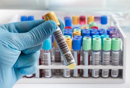 mano di un esame del sangue tubo tecnico di laboratorio in possesso e lo sfondo di un rack di tubetti di colore con i campioni di sangue di altri pazienti tecnico di laboratorio in possesso di un test in provetta di sangue