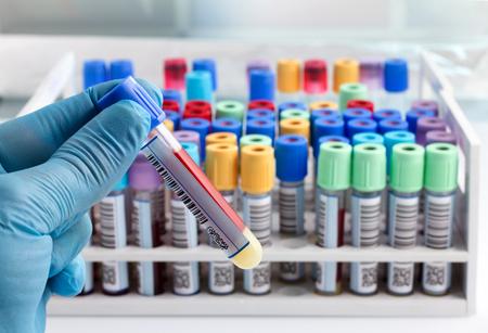 mano di un esame del sangue tubo tecnico di laboratorio in possesso e lo sfondo di un rack di tubetti di colore con i campioni di sangue di altri pazienti tecnico di laboratorio in possesso di un test in provetta di sangue con codice a barre