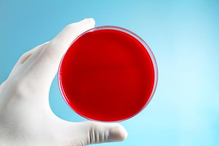 La mano de un investigador del laboratorio que sostiene el plato medios preparados en la mano que sostiene laboratorio de microbiología placa de Petri en fondo azul Foto de archivo - 45985982