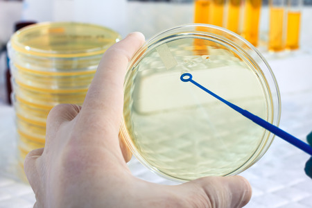 an inoculation: hand of microbiologist cultivating a petri dish whit inoculation loops and at background tubes and tools of laboratory  A scientists hand holding a petri dish and loopful