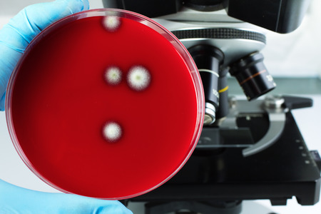 microorganisms: hand of a doctor with a petri dish with mushrooms growing beside the microscope  Laboratory technician with a petri dish with growth of fungi in the lab Stock Photo