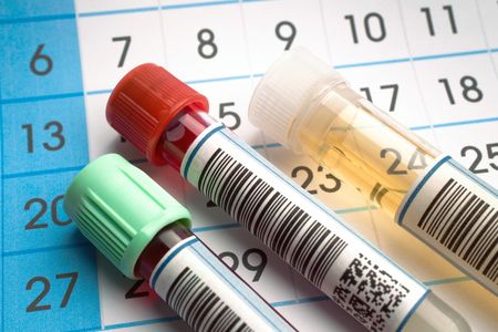 Laboratory work tools of health analysis and in the background a request calendar of citations  tubes of blood and urine samples for analysis with report and calendar citations Stock Photo