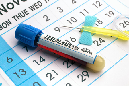 blood draw: blood sample tube and needle on the bottom of an appointment calendar in lab table  blood tube and needle over a appointment calendar in workbench of lab Stock Photo