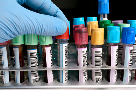 hand holding a tube labeled of the rack with other tests  hand holding Blood tests 스톡 콘텐츠